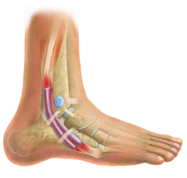 Professional Peroneal Tendonitis Treatment