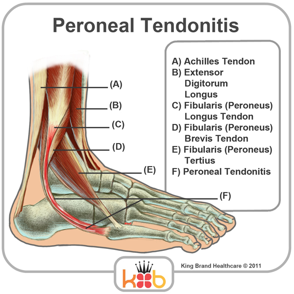 King Brand Ankle Injury Peroneal Tendonitis Diagram Image Labelled