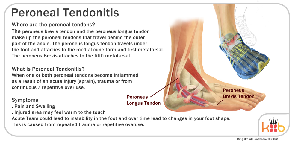 King Brand Ankle Injury Image Diagram Peroneal Tendonitis