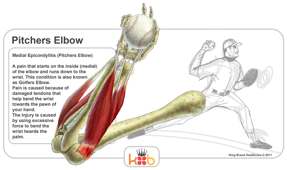 King Brand Pitchers Elbow Information Diagram Facts Treatment