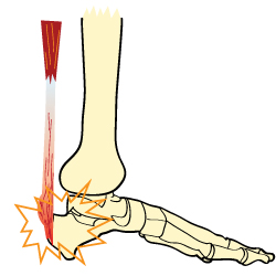 Plantar Fasciitis Condition Anatomy Diagram
