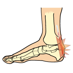Plantar Fasciitis Symptoms Anatomy Diagram