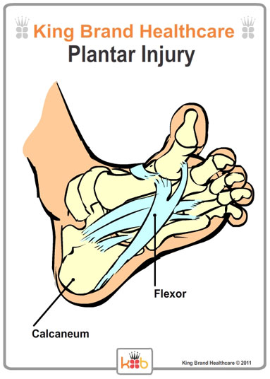 King Brand Bottom View of Foot with Plantar Injury Labelled Diagram Bones