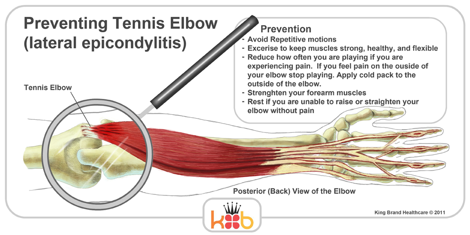 King Brand Tennis Elbow Treatment Injury Prevention Wraps