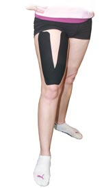 Quadriceps Tape Application