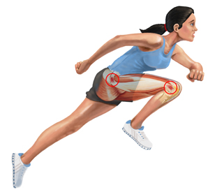 Running Girl Iliotibial Band Syndrome Banner