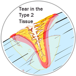 Type 2 tissue tear