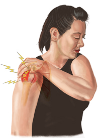 An Illustration of a Person Suffering From a Rotator Cuff Injury