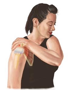 Shoulder Injury