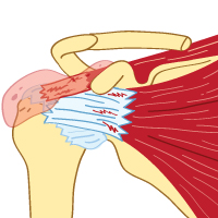 King Brand Rotator Cuff and Bursitis Illustration