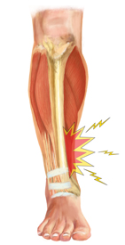 Kingbrand Shin Splints Illustration