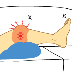 Kingbrand Illustration of Syptoms for an ACL and PCL Tear