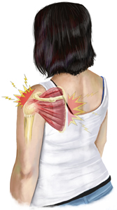 Supraspinatus and Infraspinatus Treatment