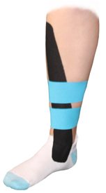 King Brand Tape Taping Tibialis Anterior Tendonitis