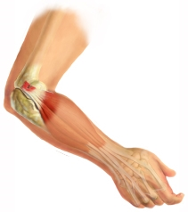 Muscle and Tendons of the ankle