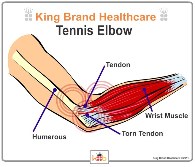 Tennis Elbow Outside View Lablled Diagram King Brand Image