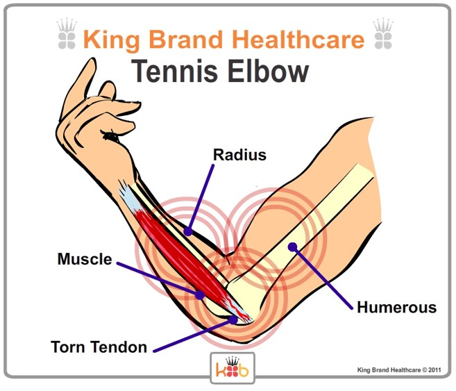 Tennis Elbow Inside View Lablled Diagram King Brand Image