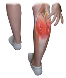 Torn Calf Muscle Banner
