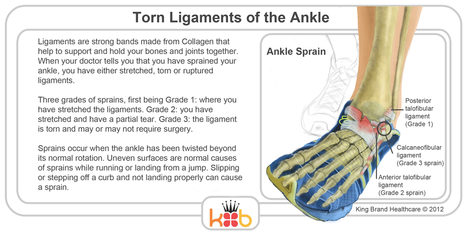 King Brand Ankle Ligaments Image Diagram Running Injuries