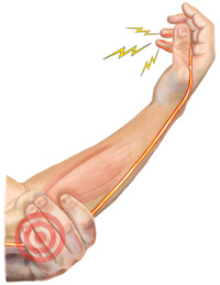 An Illustration of the Areas of Pain in the Elbow that the BFST® Can Treat