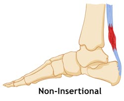 Kingbrand Tendonitis (Non Insertional) Diagram