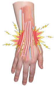 Extensor Tendonitis Treatment