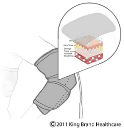 King Brand BFST Elbow Wrap Helps You Heal Quickly and Safely and Reuce Time Lost Due to Injury