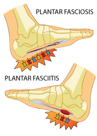 Plantar Faciitis vs Plantar Fasciosis Symptoms