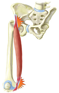 An Illustration of a Sartorius Muscle Injury